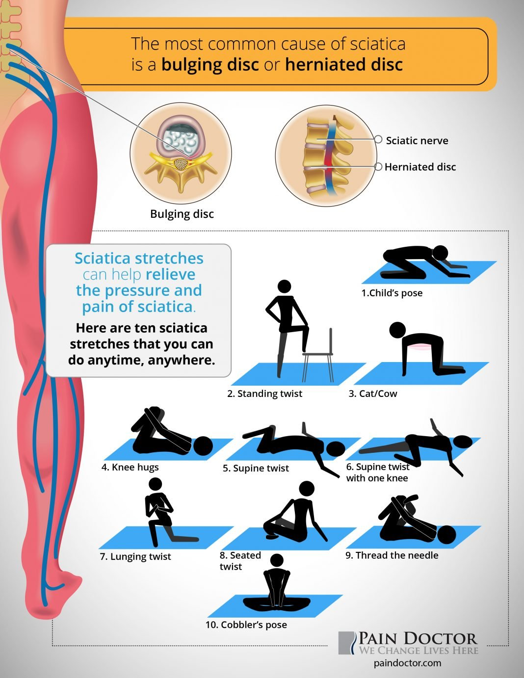 10 sciatica stretches you can do anytime anywhere pain