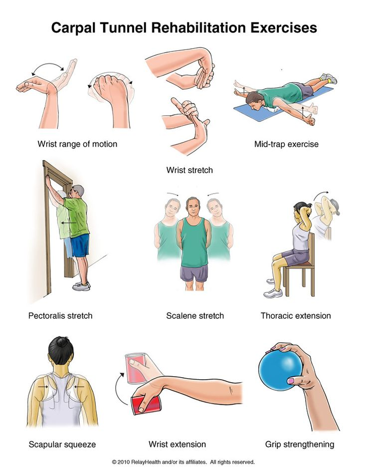 12 best Carpal Tunnel Syndrome images on Pinterest ...