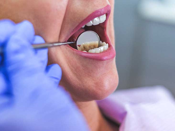abscessed tooth types symptoms causes treatment and
