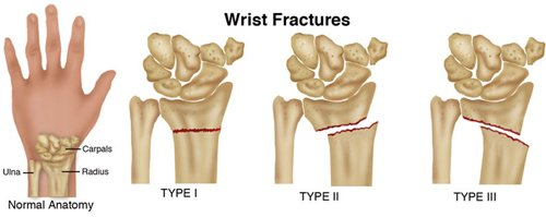 Broken Wrist Hand Therapy Physiotherapy
