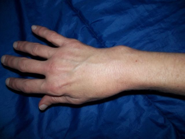 Broken Wrist Treated with Homeopathy