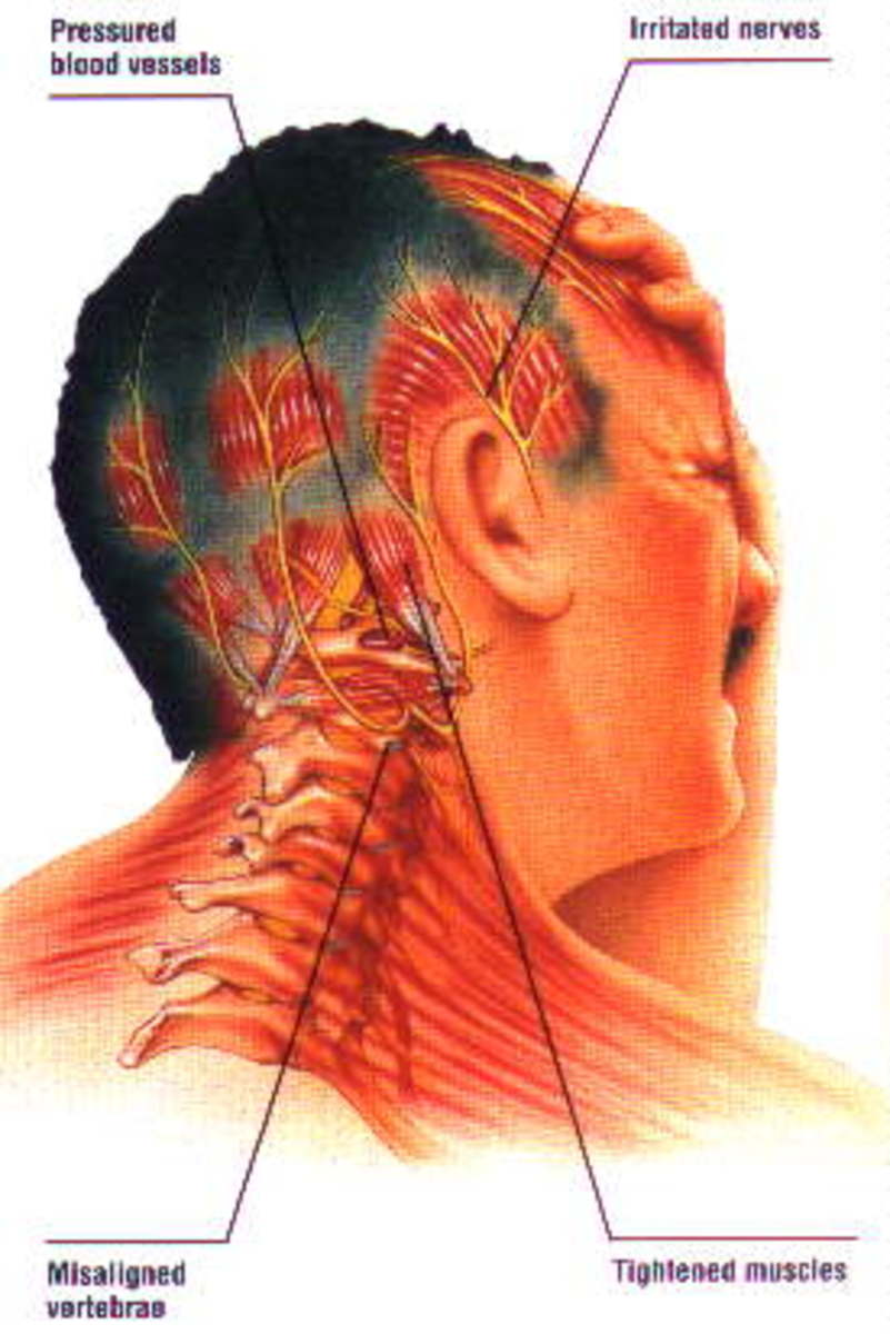 can neck and spine misalignment cause migraines