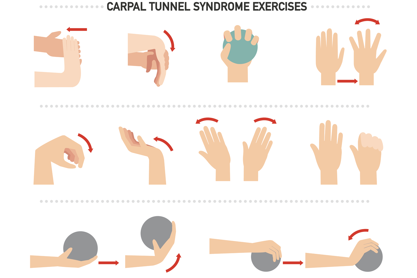 Carpal tunnel syndrome: common signs and symptoms