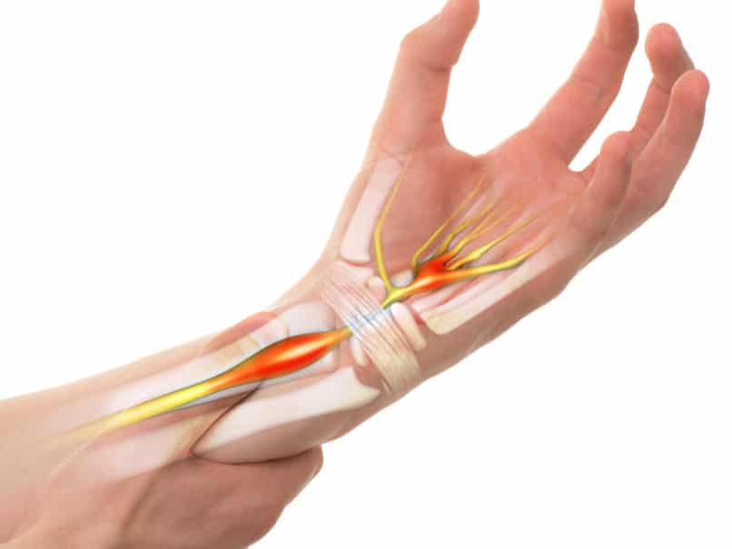 Carpal Tunnel Syndrome: Should I See a Brooklyn Workers ...