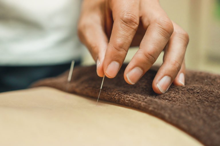 chronic pain that acupuncture therapy can help with