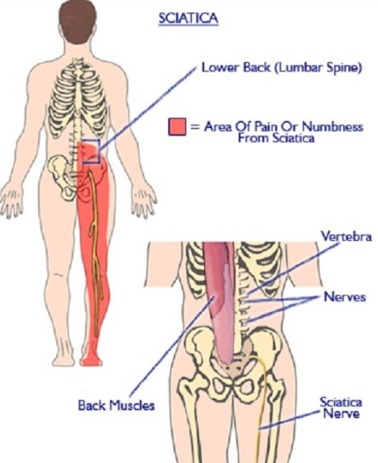 common causes of lower left and right back pain