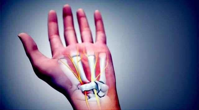 DO YOU HAVE CARPAL TUNNEL SYNDROME ? TRY THESE EXERCISES