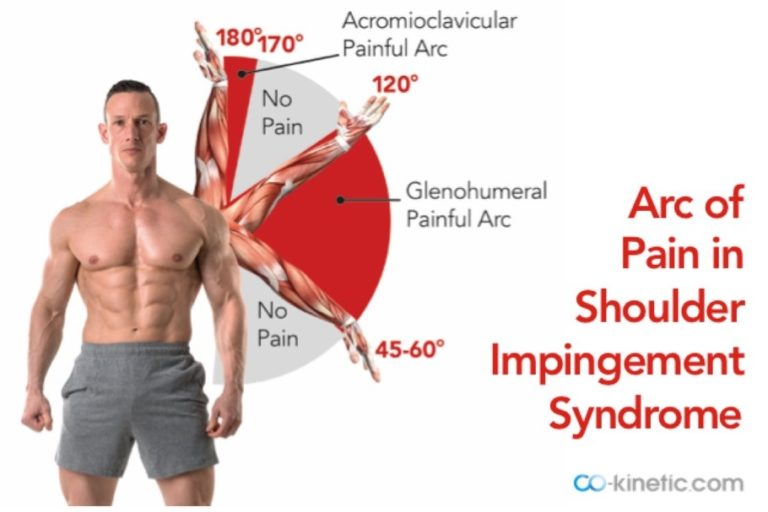 Feeling The Pinch? Stubborn Shoulder Impingement Syndrome ...