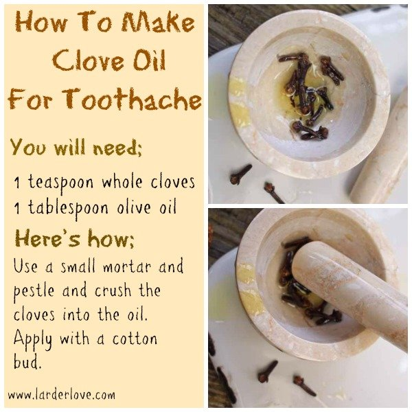 Home Remedies for a Toothacheâ?