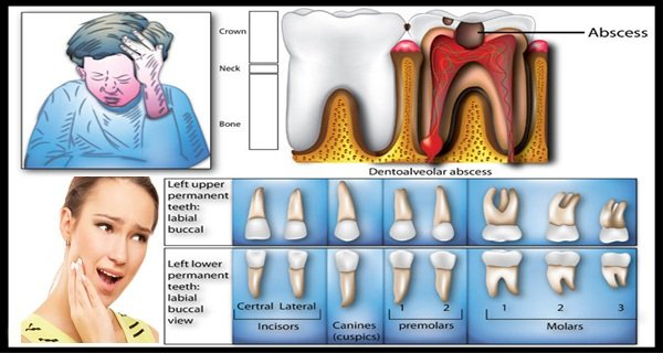 Home Remedies For Toothache â HEALTHY FOOD ADVICE
