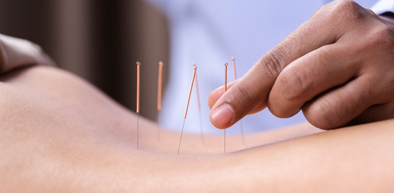 How Acupuncture For Sciatica Works To Relieve Pain ...