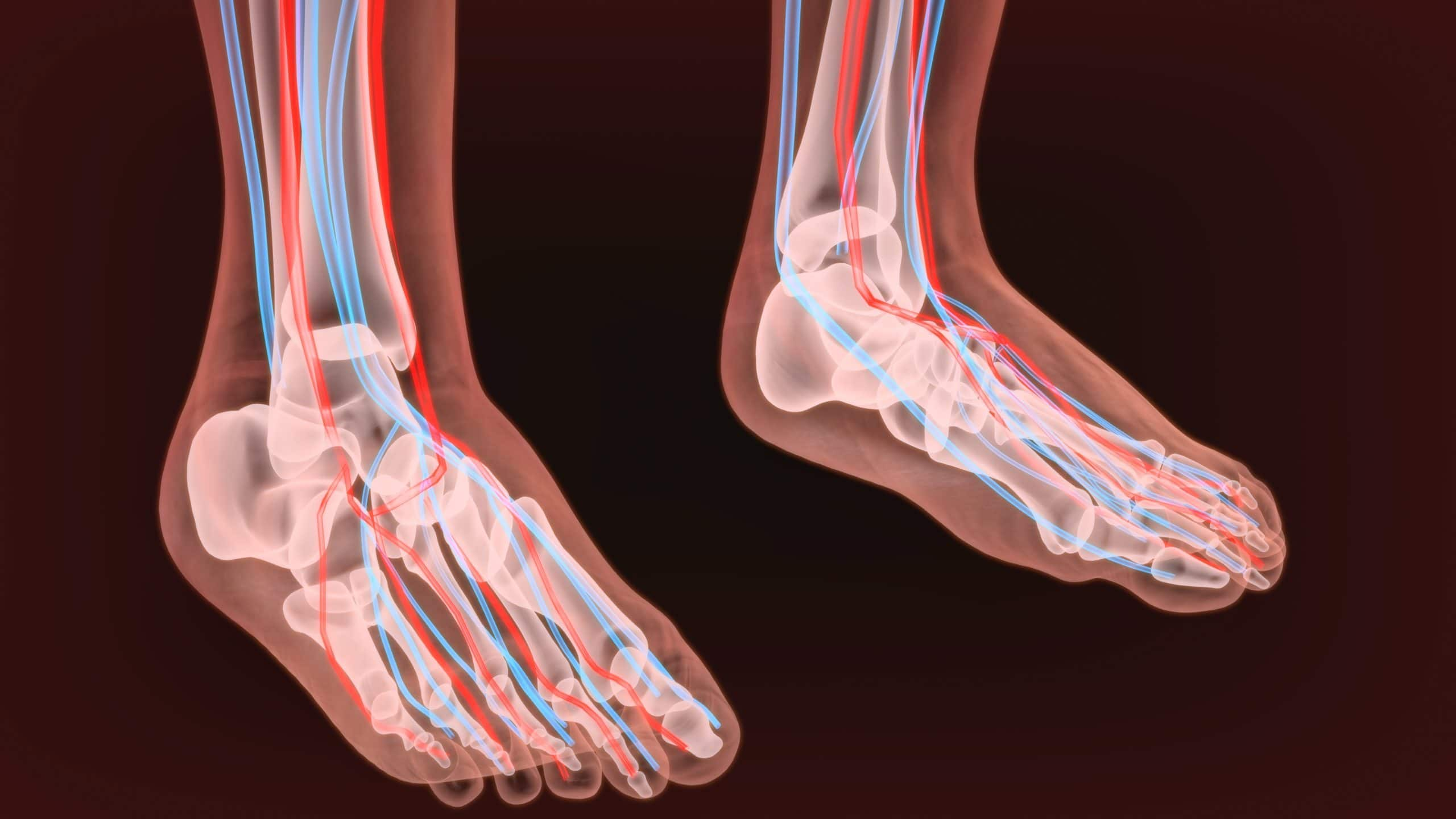 How Do I Stop Nerve Pain in My Feet?