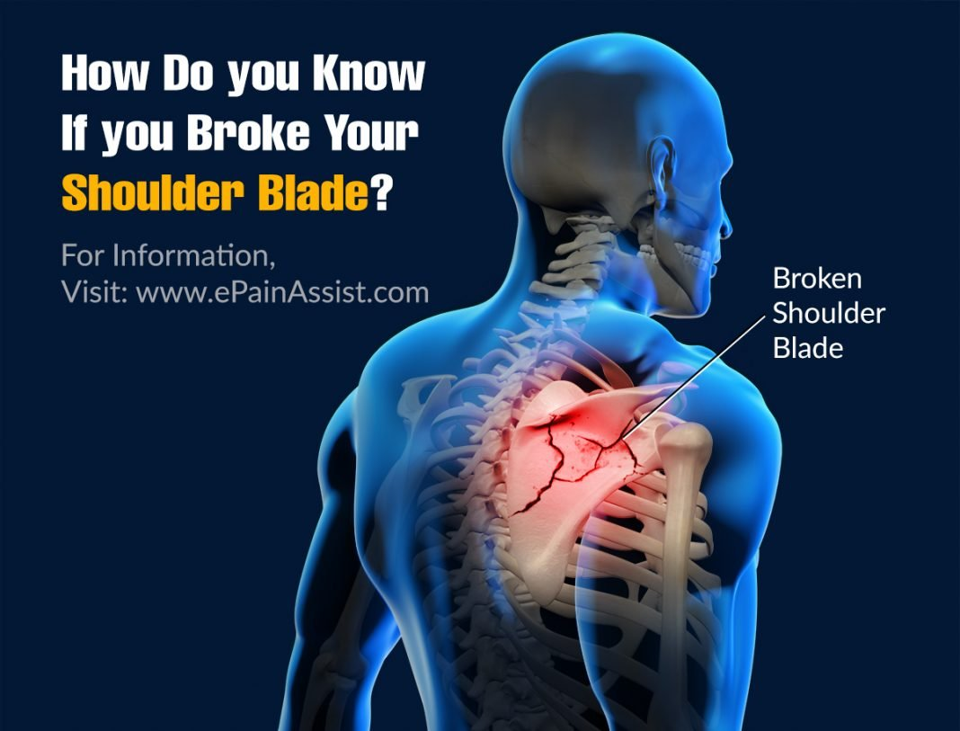 how do you know if you broke your shoulder blade
