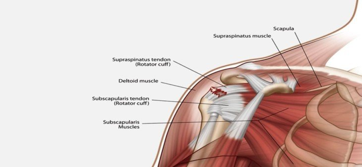 how long does rotator cuff surgery take shouldermd seattle