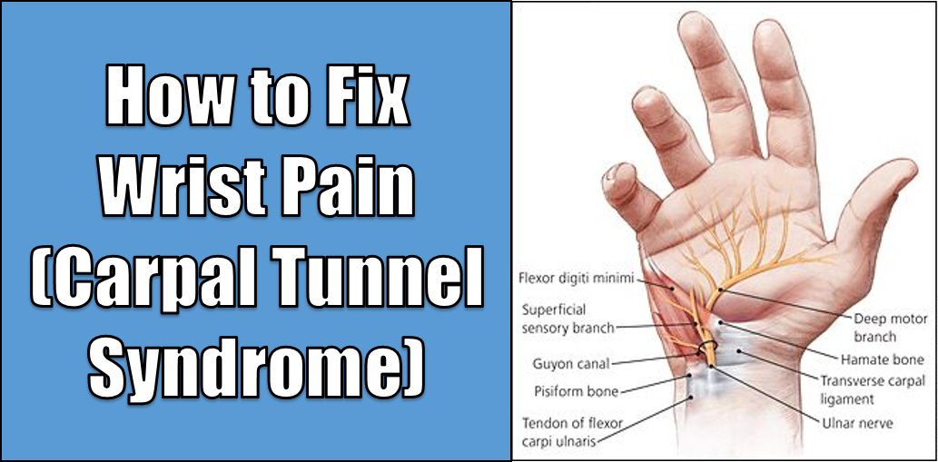 How to Fix Wrist Pain (Carpal Tunnel Syndrome ...