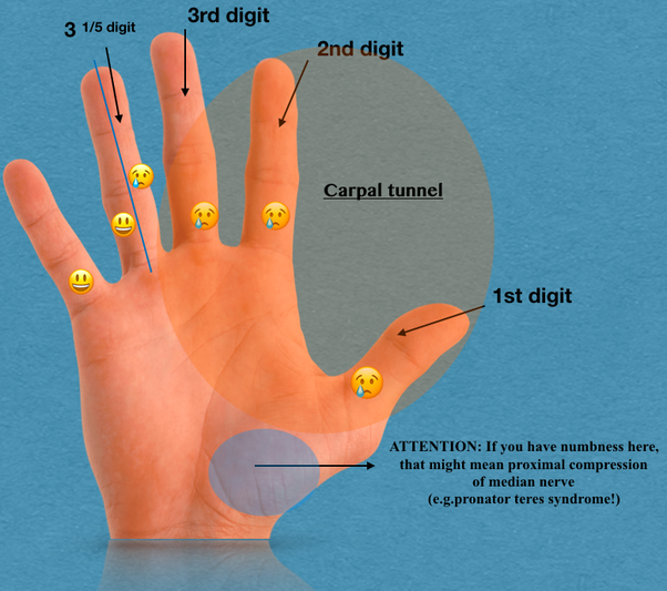 How to know if you have carpal tunnel syndrome