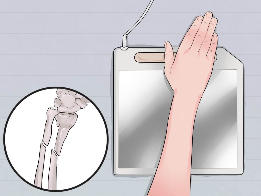 how to tell the difference between a wrist sprain and a