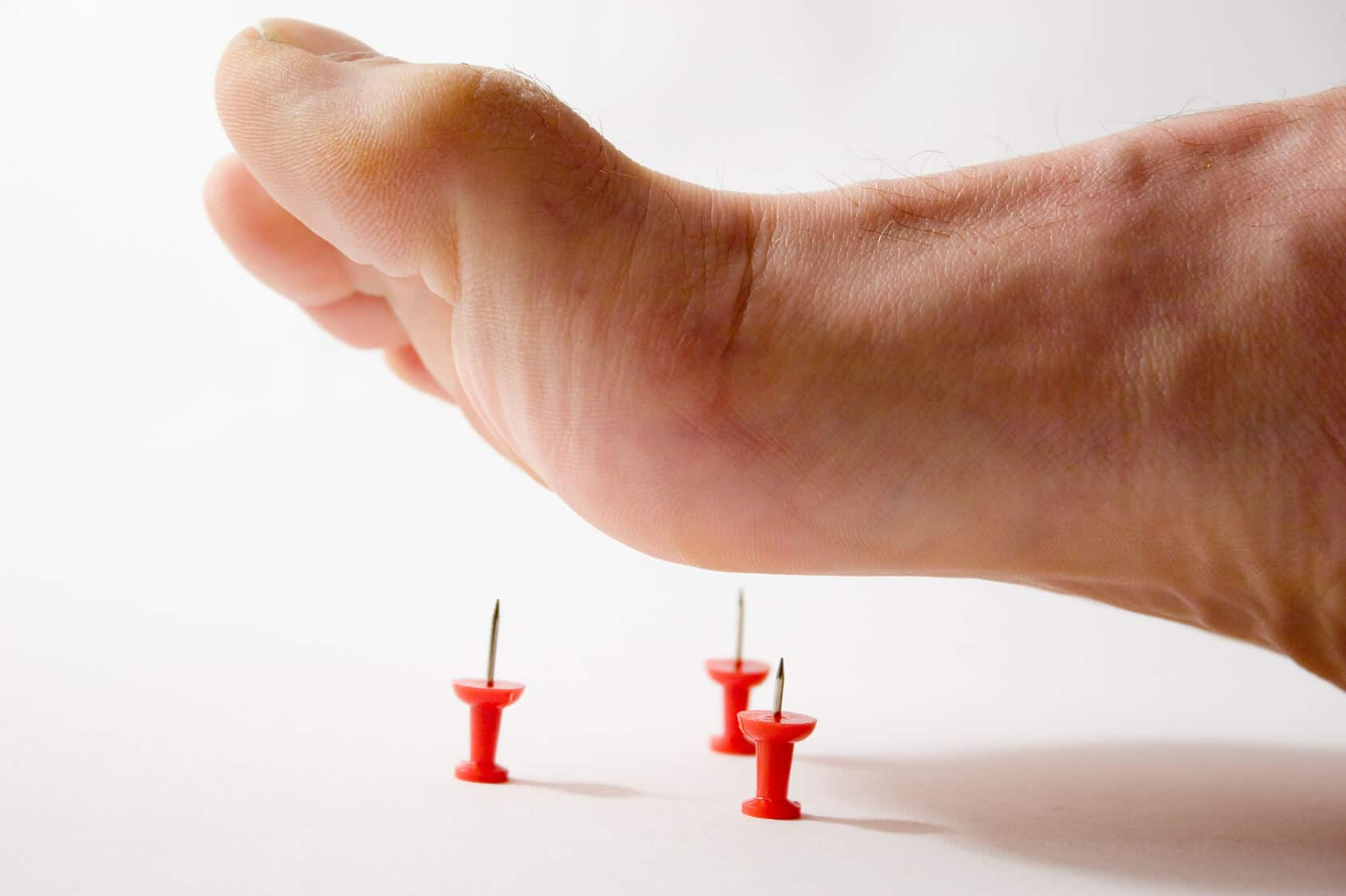 How To Treat Nerve Pain In Feet Naturally