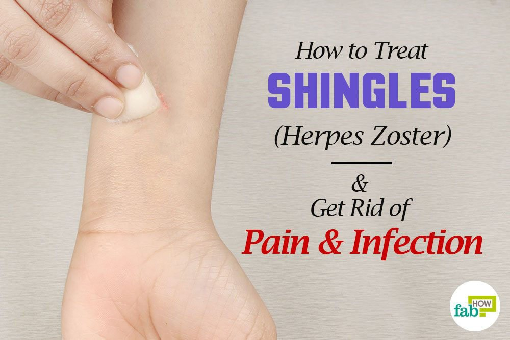 How to Treat Shingles (Herpes Zoster) and Get Rid of Pain ...