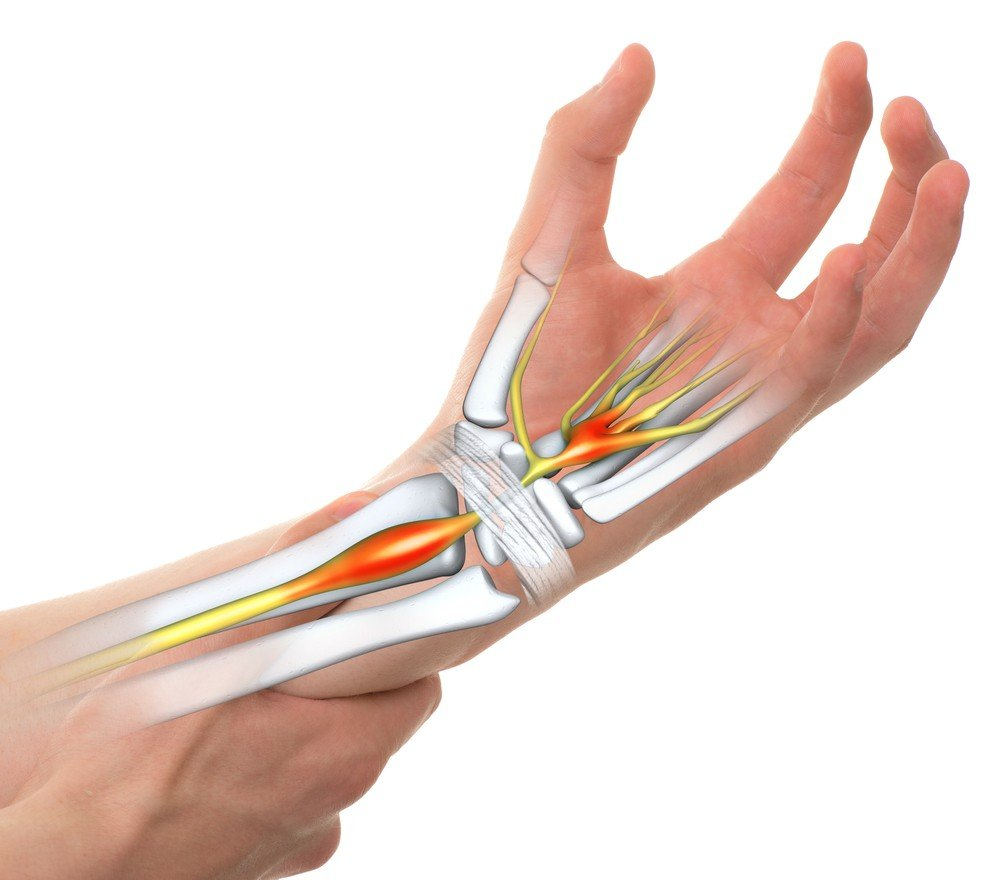 how well does surgery work carpal tunnel surgery clinic