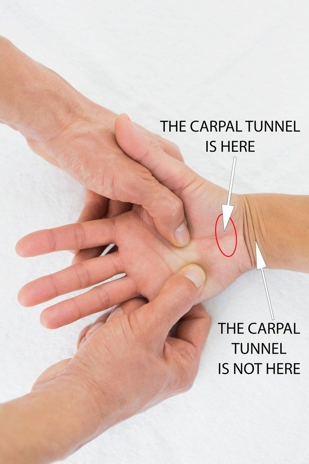 medically is the carpal tunnel the region around the