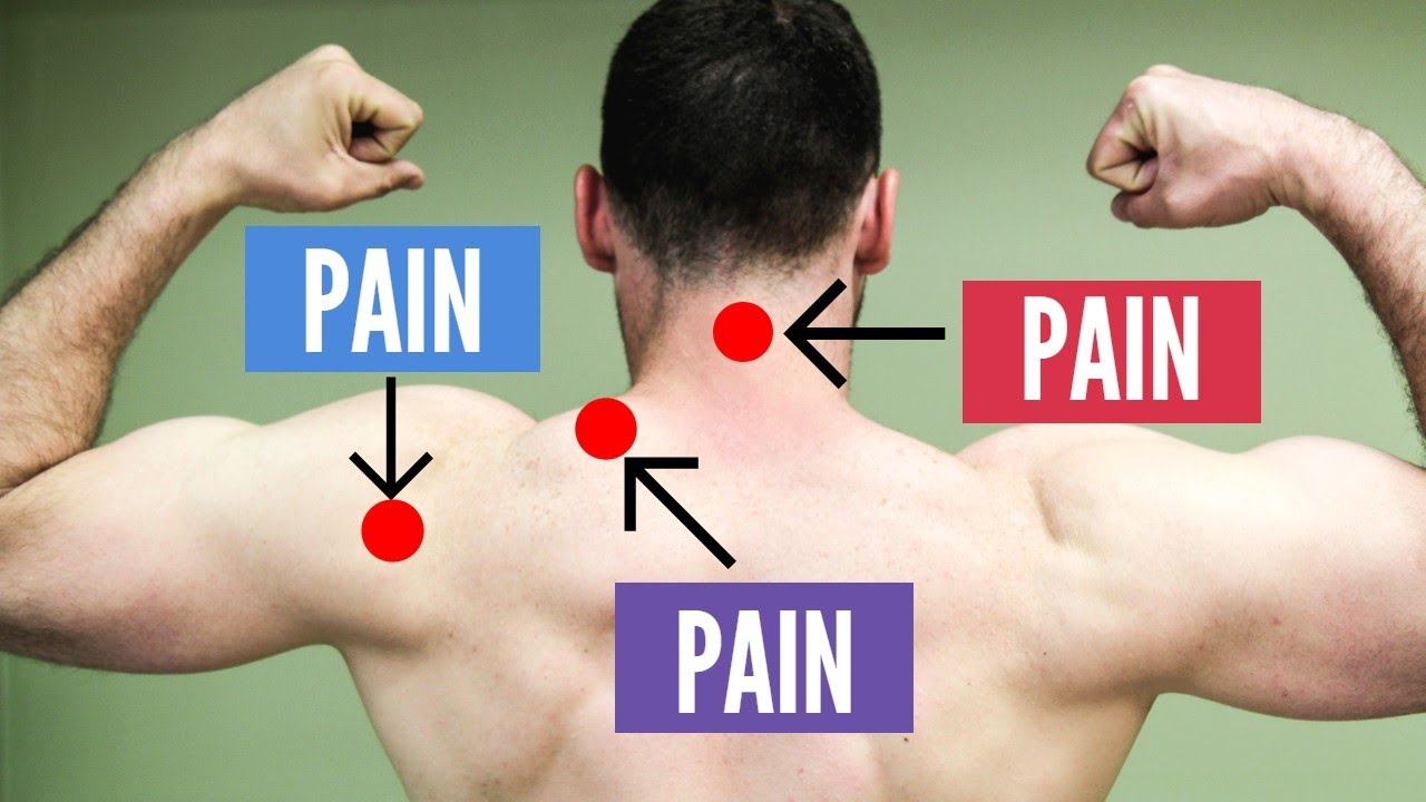 My 3 Step Approach to STOP Neck, Shoulder, & Trap Pain ...