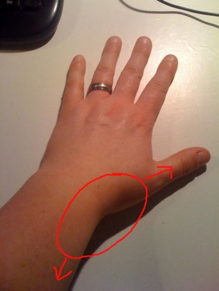 my experience with thumb and wrist pain includes