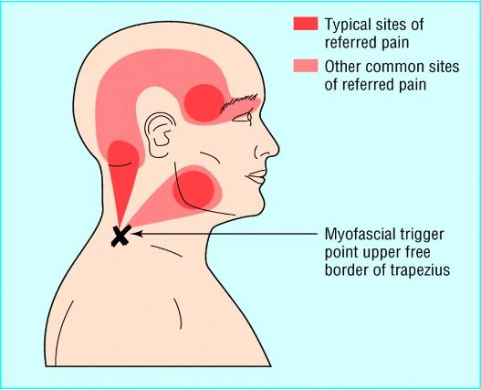 Neck and shoulder pain causing migraines, severe arm and ...
