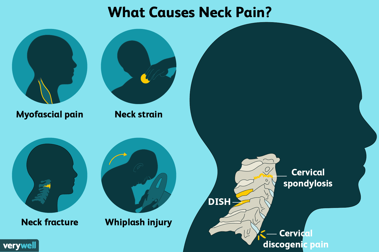 Neck Pain: Causes, Treatment, and When to See a Doctor