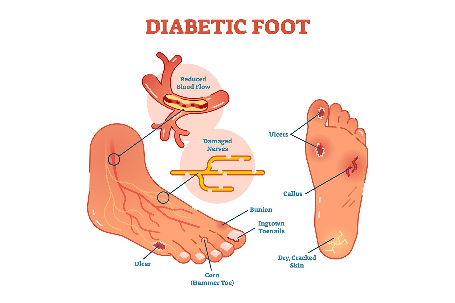 Nerve Pain is Not Just for Diabetics
