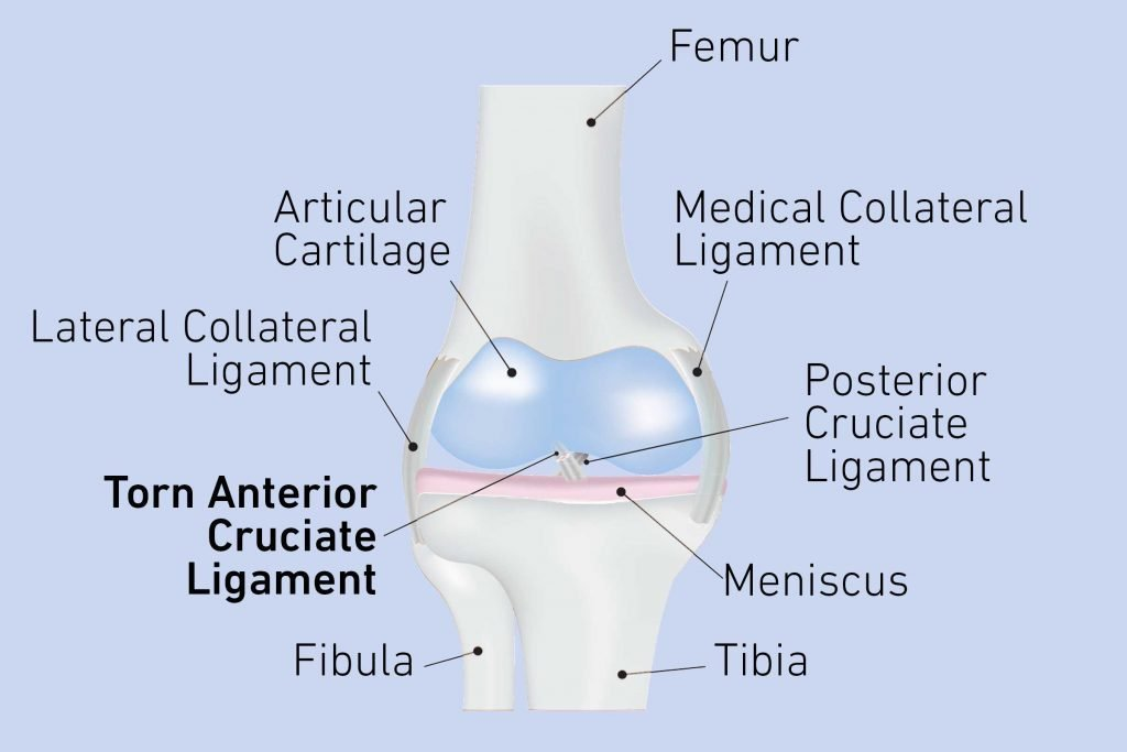 Pain Behind Knee: Causes and Treatment for Knee Pain ...