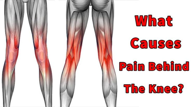 Pin on What Causes Pain Behind The Knee Pain Behind Knee ...
