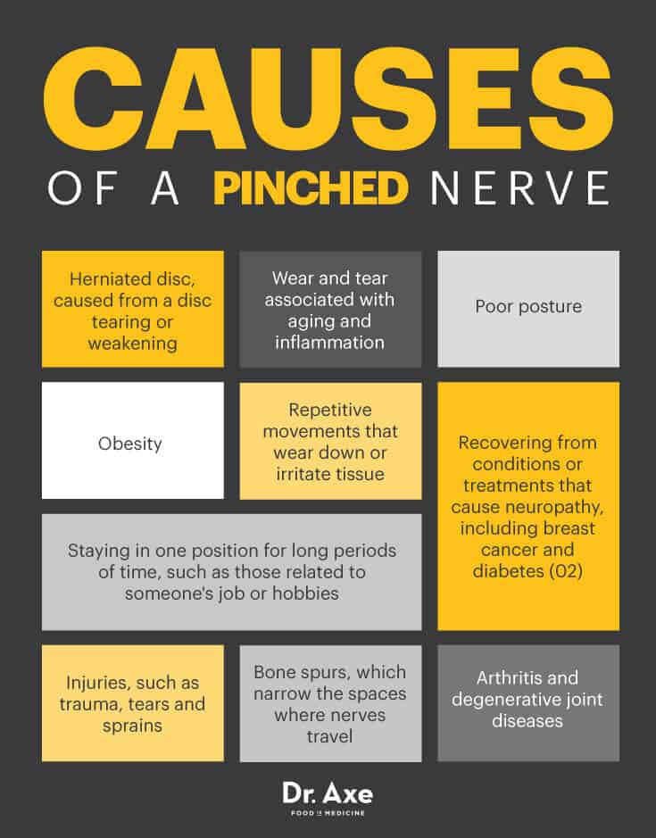 Pinched Nerve Symptoms, Locations & Treatments