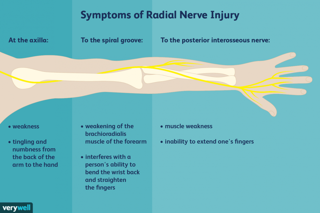 radial nerve pain causes and treatments
