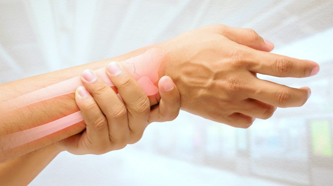 scaphoid fracture faqs answered dr seeds blog