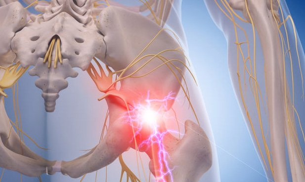 sciatica relief epidural steroid injection or oral steroids