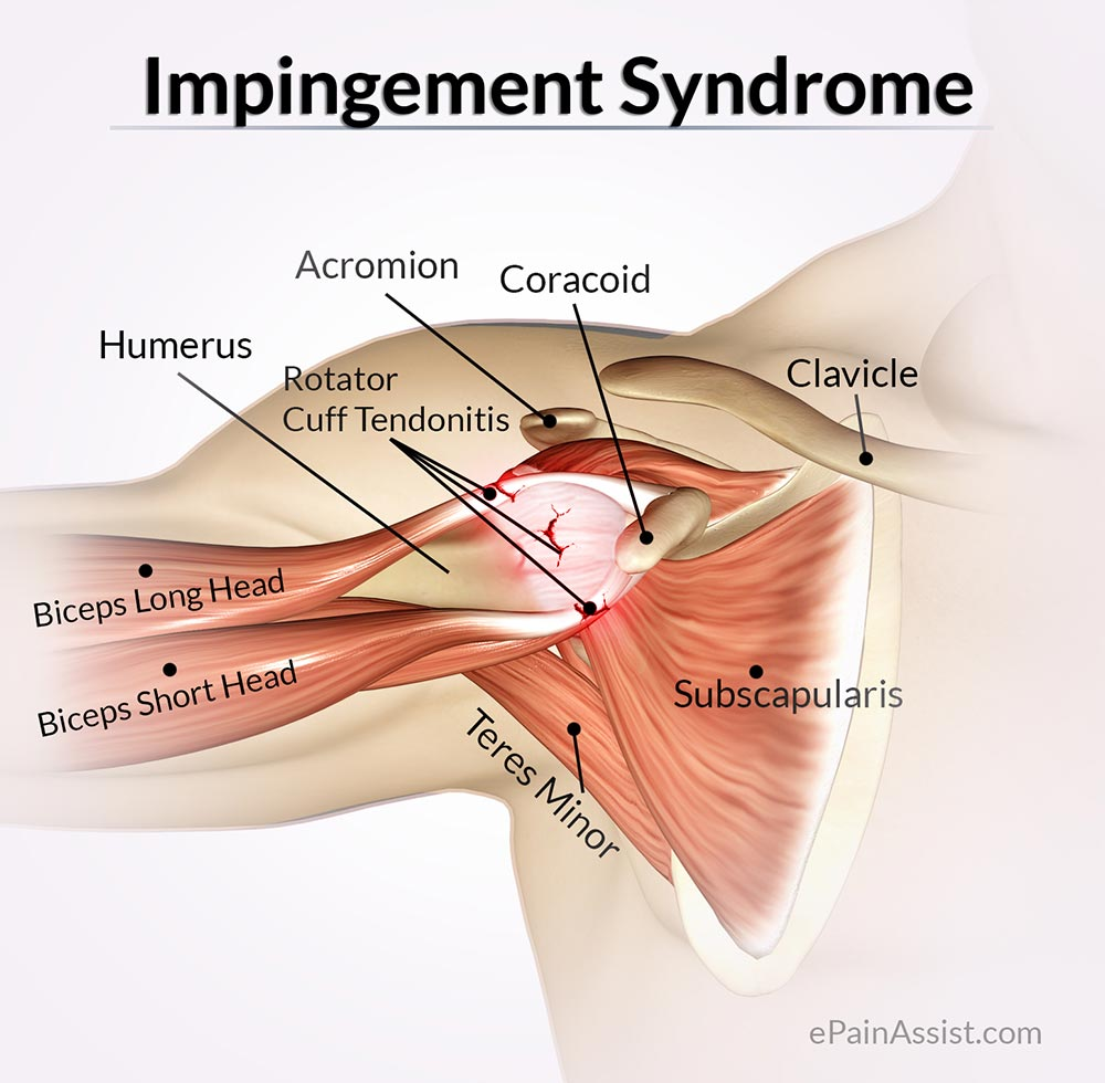 Shoulder Impingement – Beechboro Physiotherapy