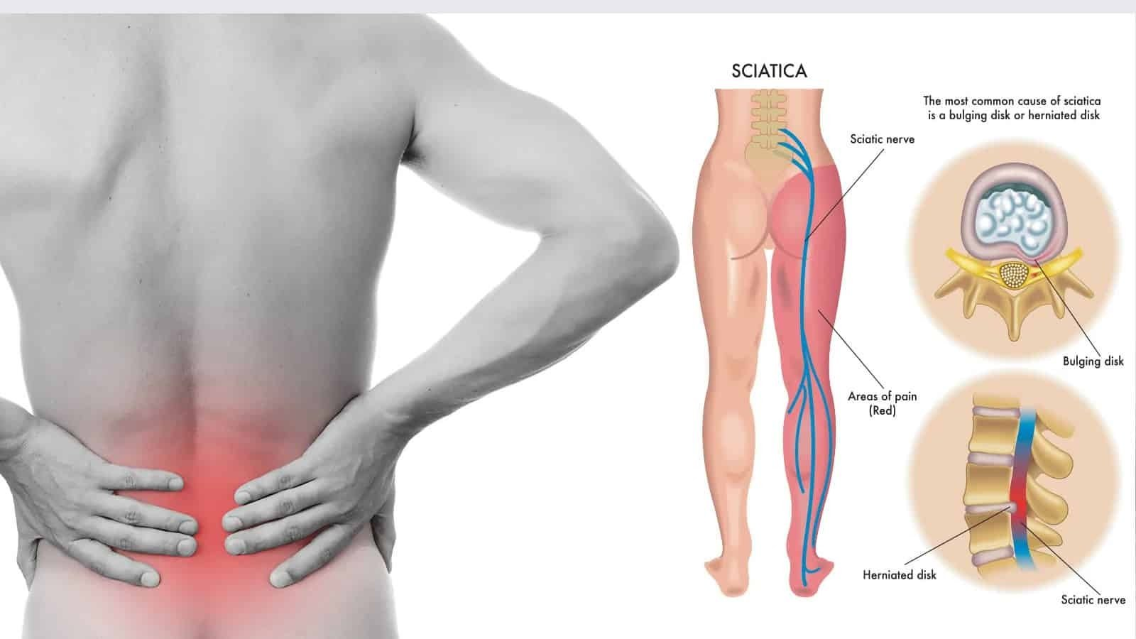 Solution for your Sciatica and Low back pain issue: Learn ...