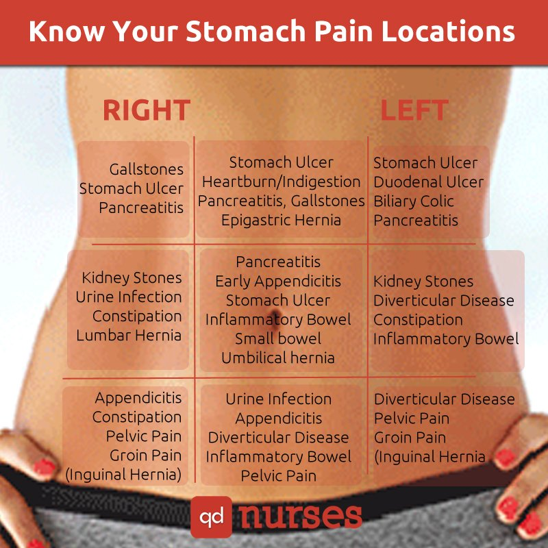 Stomach Pain Locations Chart for the NCLEX