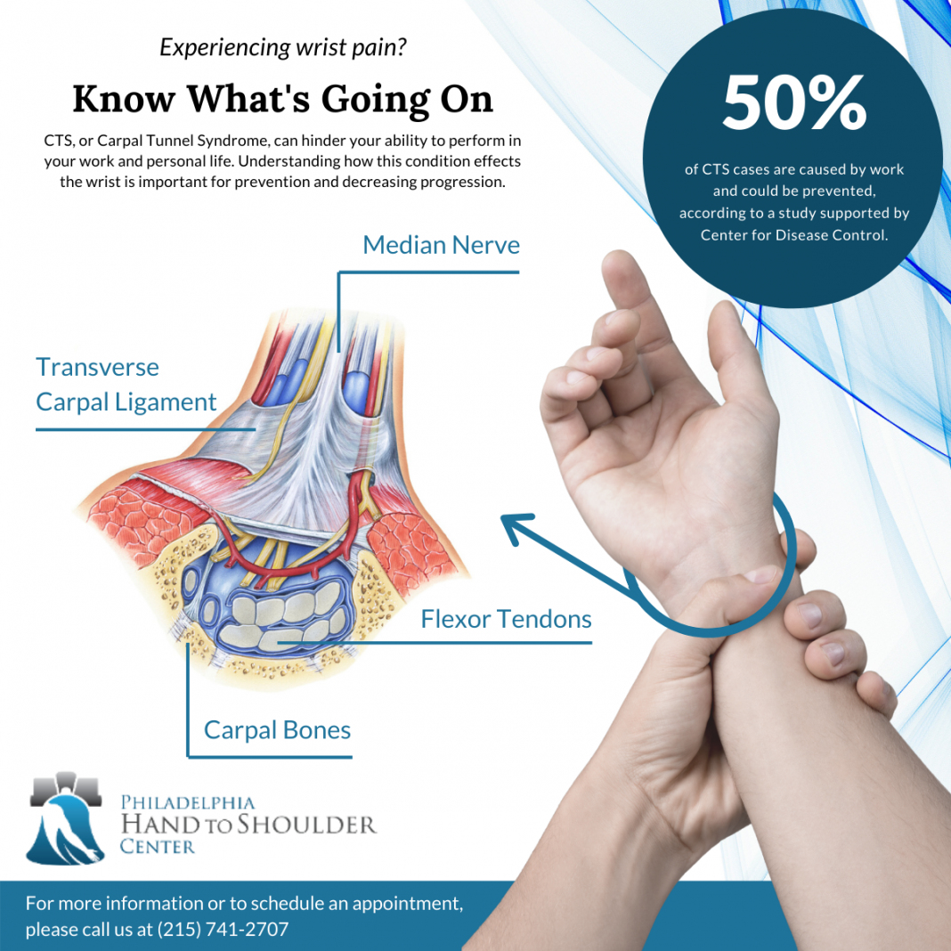 what is carpal tunnel syndrome philadelphia hand to