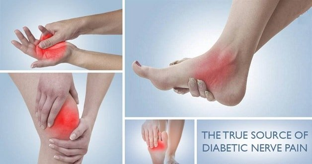 what is diabetic nerve pain its symptoms and tips to