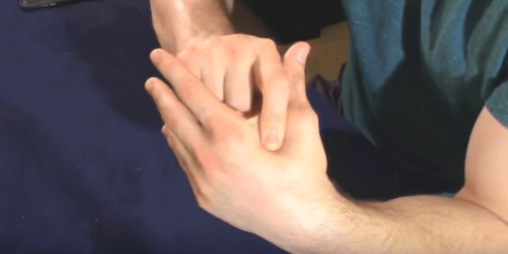 What is Severe Carpal Tunnel Syndrome?