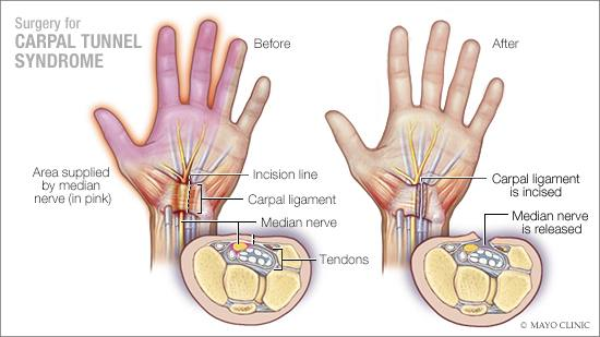 What is the normal recovery time for carpal tunnel surgery ...
