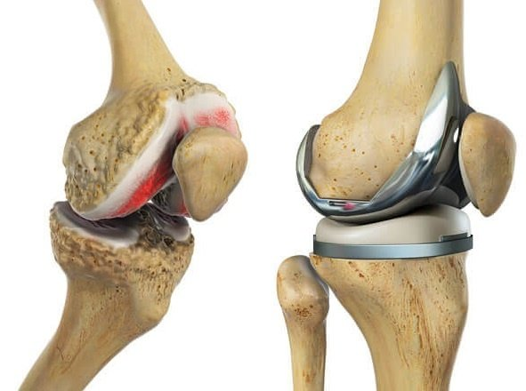 What is Total Knee Replacement?