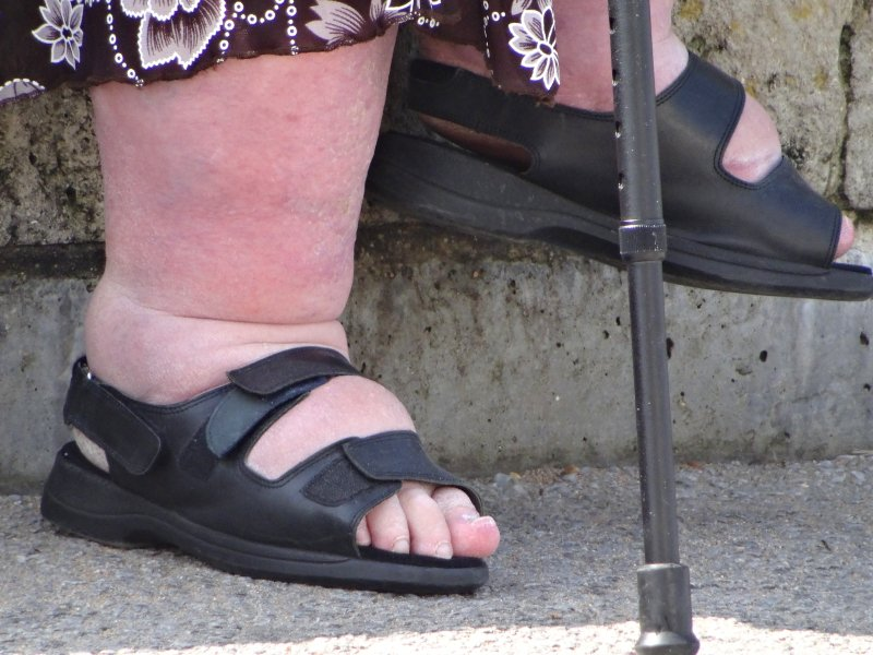 when is edema cause for concern the oldish