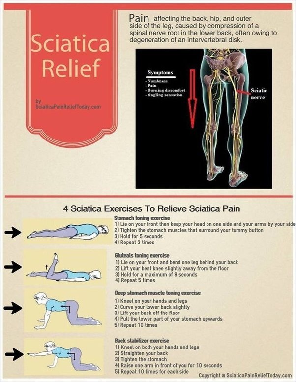 why does the sciatica cause knee pain quora