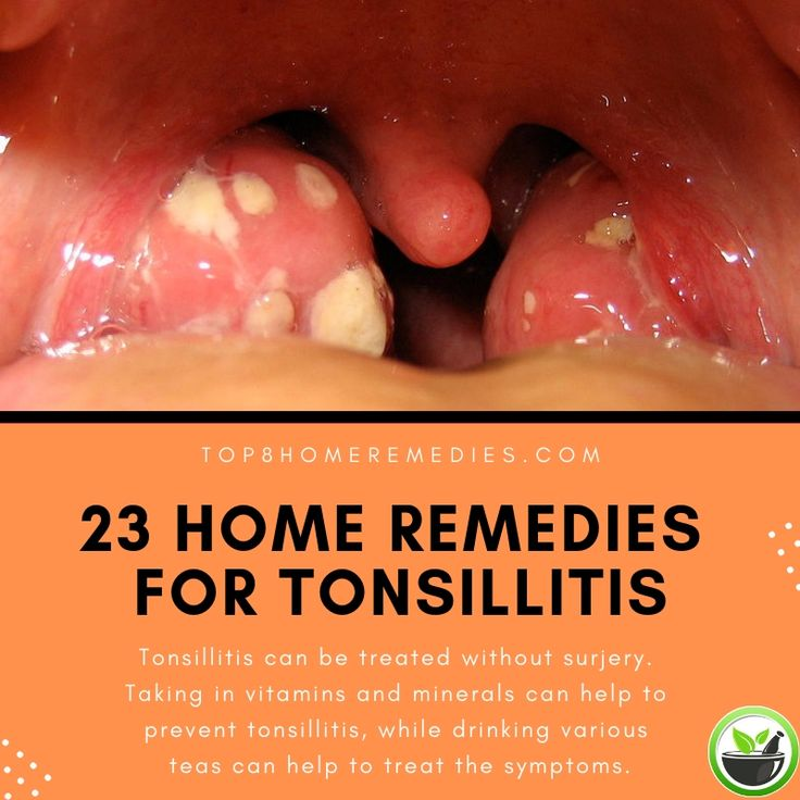 Why Is There Bleeding After Tonsillectomy And ...