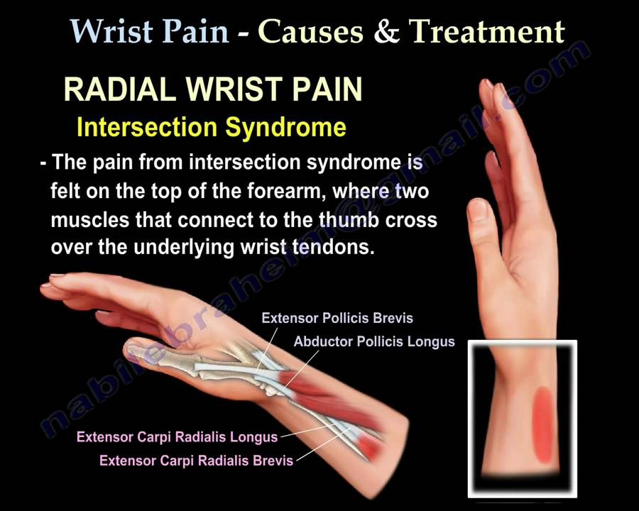 Wrist Pain,causes and treatment,Part 2